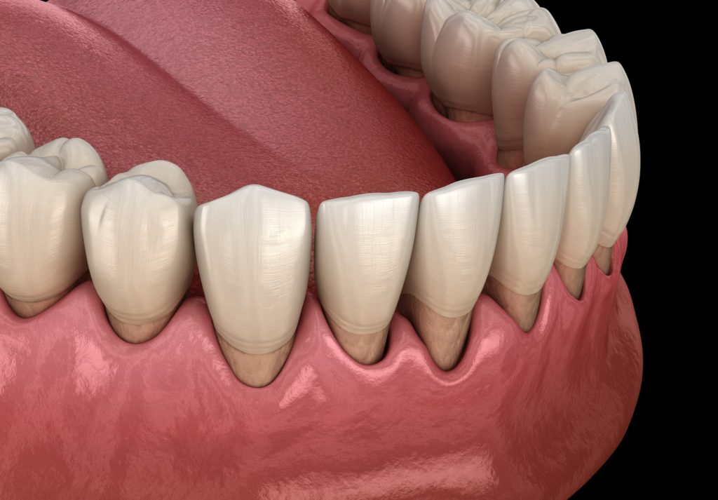 Illustration of a bottom row of teeth showing signs of periodontal/gum disease with the gum line receding