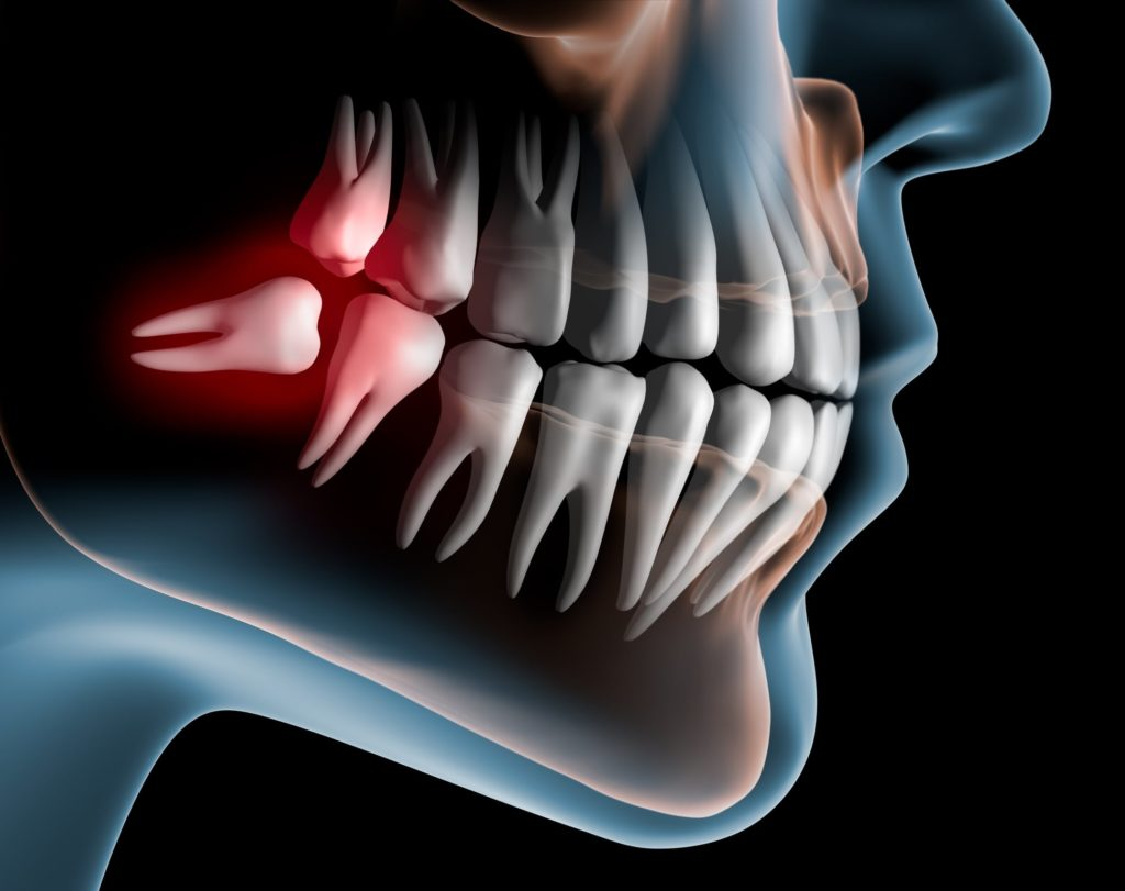 Illustration of a dental x-ray showing an inflamed wisdom tooth growing in sideways