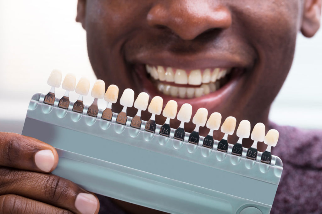 a smiling man holding a tray with teeth of varying degrees of whiteness